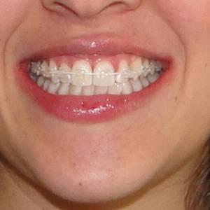 Ortodontziak